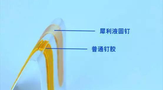 不知道犀利液固钉的功能有多强大?看完这篇你就知道了